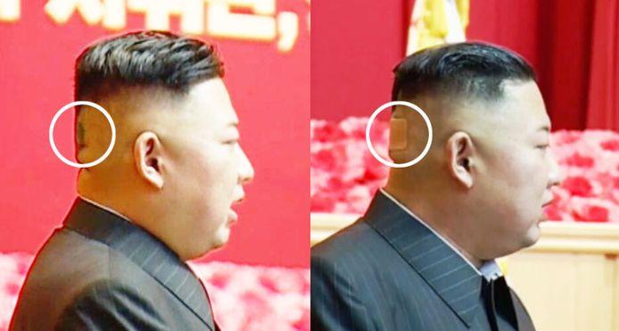 De Noord-Koreaanse leider Kim Jong-un is met een pleister op het hoofd (R) gespot. Op een ander beeld -dat vorige maand gemaakt werd- was de leider met een donkere vlek op het achterhoofd te zien (L).