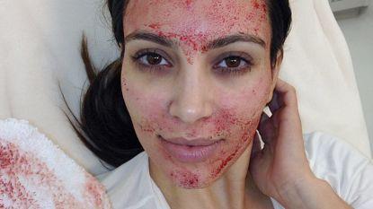"""Redactrice Anke (44) probeerde de Vampire Facelift: """"Alsof je recht op je gezicht bent gevallen"""""""