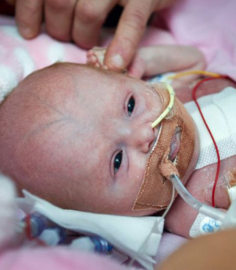 Klein mirakel: baby overleeft geboorte met hart buiten lichaam